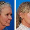 plastic surgeon beverly hills - Picture Box