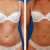 breast augmentation beverly... - Picture Box