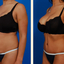 liposuction beverly hills - Picture Box