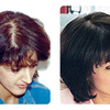 Hair Transplant in Mumbai -... - Hair Transplant in Mumbai -...