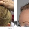 18 - Hair Transplant in Mumbai -...