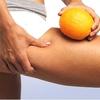 cellulite diet - Picture Box