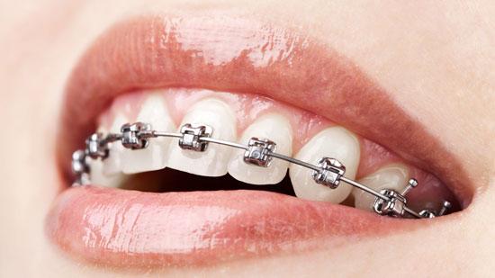 Orthodontist blenkitts