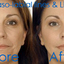Anti Wrinkle Injections Syd... - Star Cosmetic Medicine