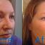 Botox Clinic Sydney - Star Cosmetic Medicine