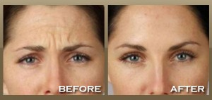 Dermal Fillers Sydney  Star Cosmetic Medicine