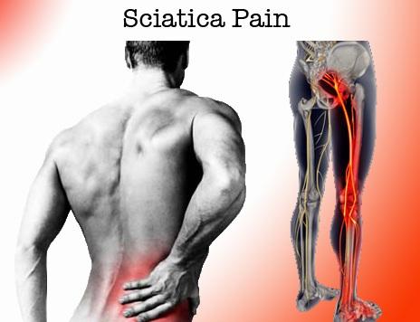 mesotherapy, sciatica pain relief Picture Box
