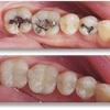 rockville md dentist - Congressional Dental Care