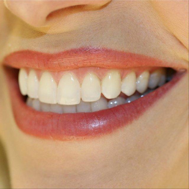 Beljenje zob od Artident Artident