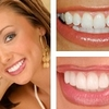 Dental Implants North Carolina - Dental Implant Charlotte