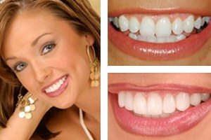 Dental Implants North Carolina Dental Implant Charlotte