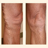 Varicose Vein Removal - Northwest Vein Center