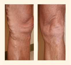 Varicose Vein Removal Northwest Vein Center