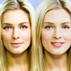 beauty-basics-before-after-... - Picture Box