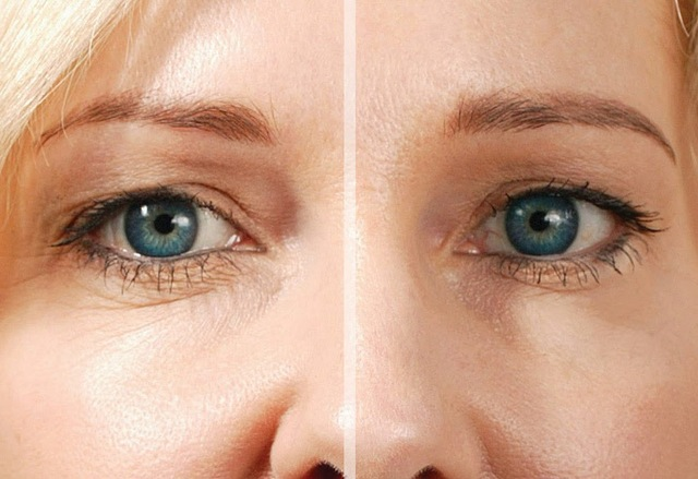 Eyesential Before&After 7 (1) http://cleansenaturalsfacts.com/eyessentials/