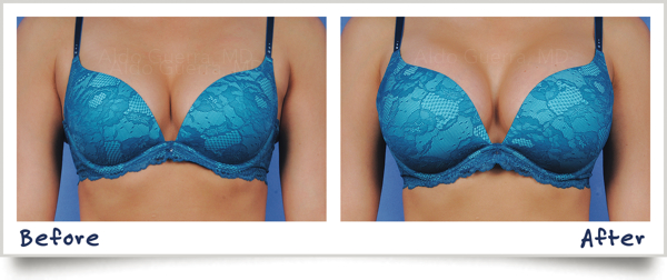 actual-patient-before-after-silicone-breast-implan http://www.1285facts.com/naturaful-breast-cream-review/