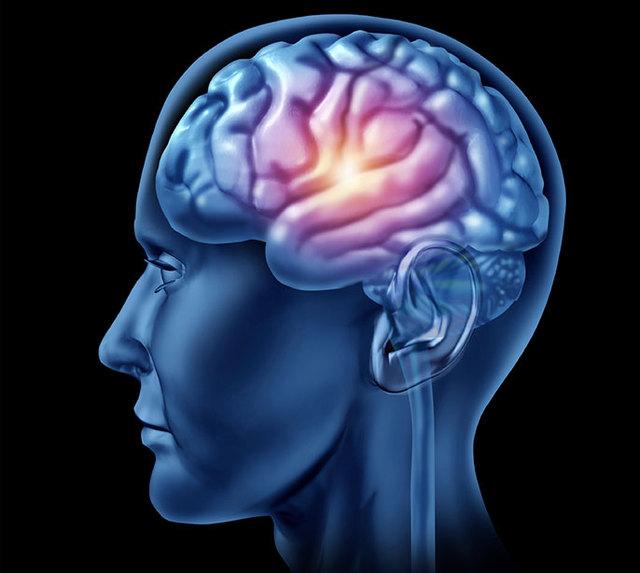 brain Picture Box