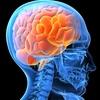 Brain 0 - Picture Box