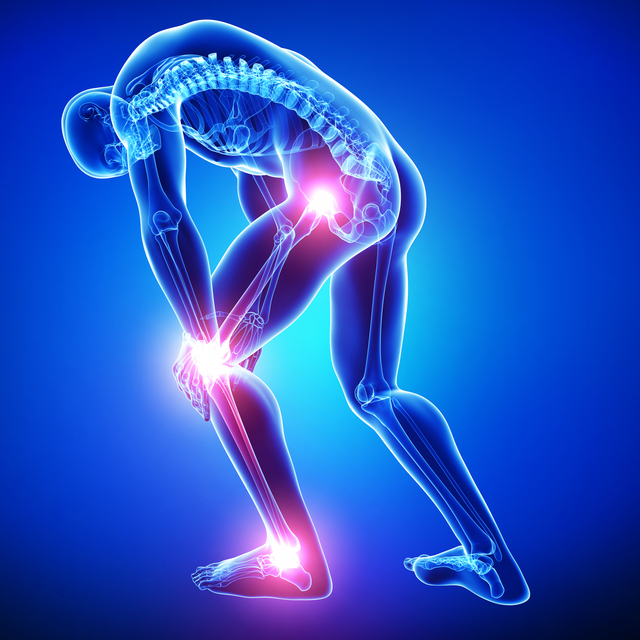 HipKneeAnklePain Your Diet Affects Your Joint Pain