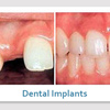 find a dentist 89123 - Picture Box