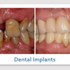 dental implants 89123 - Picture Box
