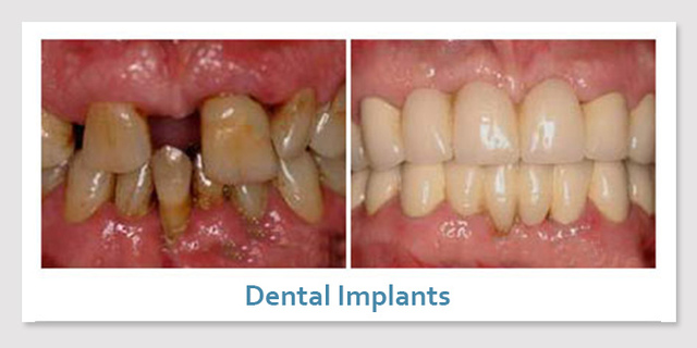 dental implants 89123 Picture Box