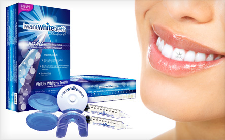 Teeth Whitening Kit What does Teeth whitening involve?