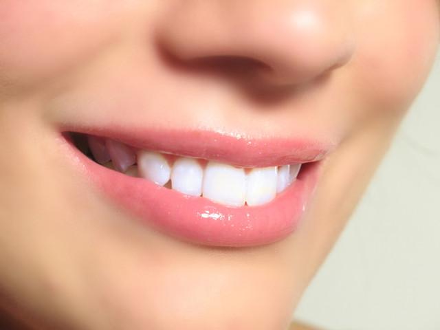 http://www.revommerce http://www.revommerce.com/white-light-smile/