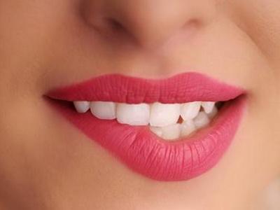 sta-vam-govori-boja-zuba Picture Box