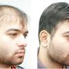 Hair Restoration | Hair Bonding | Hair Weaving | Baldness