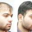 baldness - Hair Restoration | Hair Bonding | Hair Weaving | Baldness