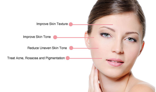 Wrinknle skin care tips! Picture Box