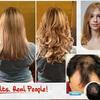follinique.jpg5 - Follinique Hair
