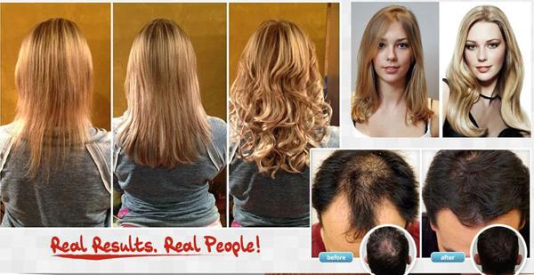 follinique.jpg5 Follinique Hair