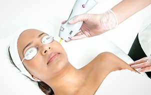 Laser Hair Removal Clinic Maidenhead Picture Box