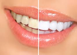 Teeth Whitening System===>>http://elevategffacts Teeth whitening product===>>http://elevategffacts.com/soleilglo/