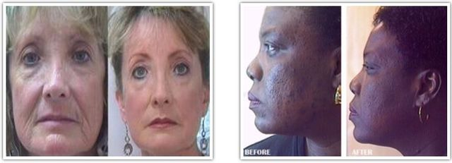 Best Skin Care Cream Picture Box