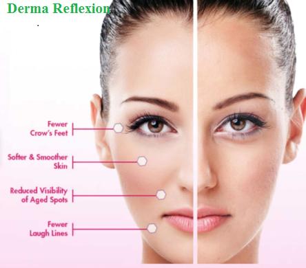 0cb22a98httphealthcareschatcomderma-reflexion-2 1 Derma Reflexion - Reduce Edema And Dark Circles around the eye area