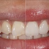dallas cosmetic dentistry - Ambriz Center for Reconstru...