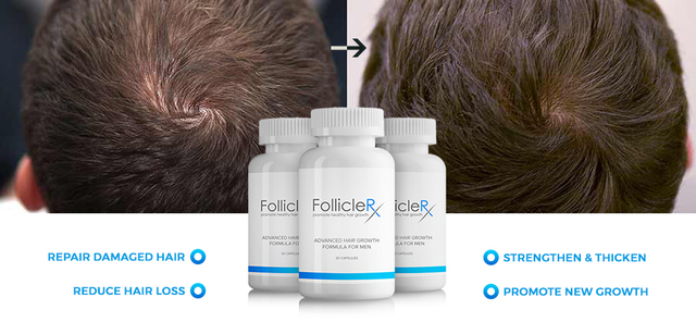 Follicle Rx 2 Exactly what are the benefits of taking Follicle Rx?