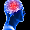 brain-injuries - Picture Box