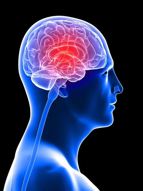 brain-injuries Picture Box