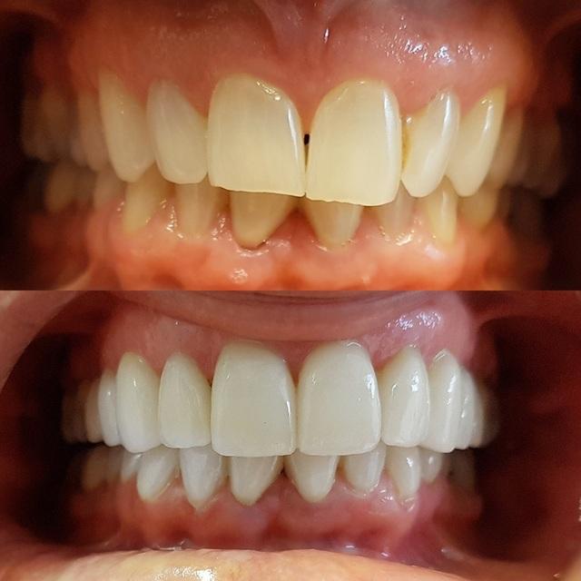 Dental Extractions Smiles On Queen