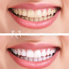 500 F 46467358 P3uMHPSMbhWv... - Teeth Whitening Dentist
