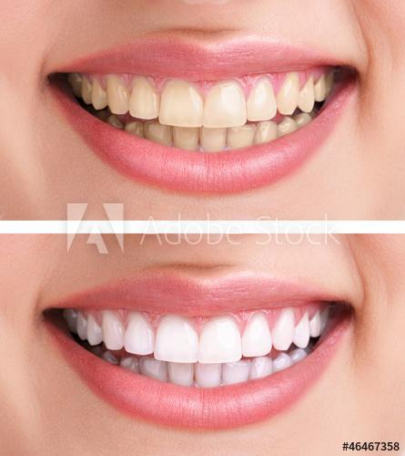 500 F 46467358 P3uMHPSMbhWveNkq9qMh4Ncwl5IrH5JX Teeth Whitening Dentist