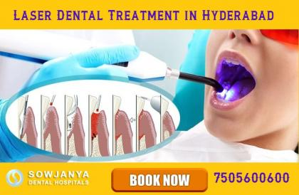 laser dental treatment in hyderabad welcome sowjan Sowjanya Dental